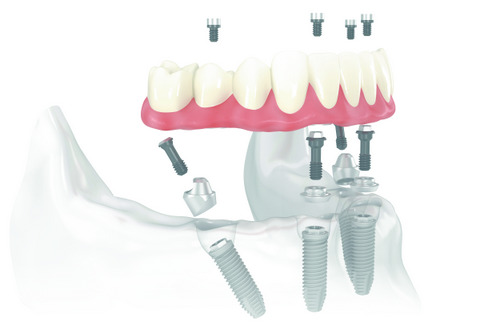 Rendering of All-on-4® Treatment Concept at Cassity & Legacy Implants and Periodontics in South Ogden and Kaysville, UT