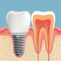 Diagram of dental implant at periodontist office in South Ogden, UT.
