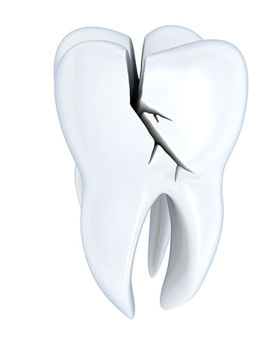 ot All Cracked Teeth Require Extraction, But Nearly All Require Some Type of Treatment