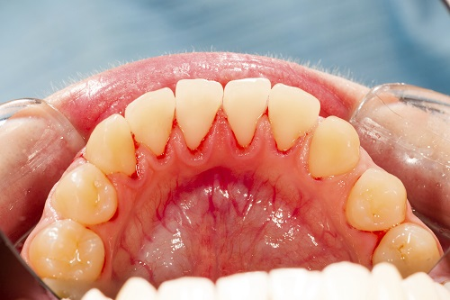How Gum Disease Can Impact Your Energy Levels